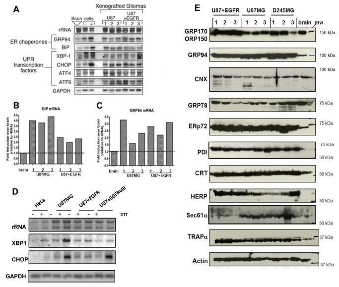 """Identification of UPR signaling response patterns in high-grade glioma xenografts and cell lines. Human glioma xenografts grown in nu/nu mice were derived from U87MG, and U87+EGFR (wild type) (cell lines described in the text and Materials and Methods). ( A ) Northern blots of 10 µg total RNA from replicate tumors (n=3) and normal brain from nu/nu mice; 10 µg total RNA from U87 tissue culture cells (""""cells"""") treated with the reducing agent DTT ([+]) lanes) to induce the UPR. Note transcriptional upregulation of UPR-induced mRNAs for ER chaperones (GRP94, BiP/GRP78) and UPR signaling components (XBP-1, CHOP, ATF4, ATF6). Quantification of BiP/GRP78 ( B ) and GRP94 ( C ) mRNA expression compared to mean level of expression in normal murine brain (dotted line). ( D ) U87MG, U87+EGFR, and U87+EGFRvIII (U87 cells transfected with the tumor-specific EGFR mutant variant III [in-frame deletion of exons 2-7]) cells show greater UPR inducibility with 1 mM DTT (determined by Northern blotting for XBP-1 and CHOP messages) than do HeLa cells. ( E ) Human glioma xenografts were derived from U87MG, U87+EGFR, and from D245MG, from a patient-derived Duke high grade glioma (from the Duke Brain Tumor BioRepository). Immunoblot of replicate tumors (n=3) from xenograft glioma models and normal brain from nu/nu mice. Note upregulation of ER chaperones in tumor lysates vs brain lysates: GRP170/ORP150, GRP94, calnexin (CNX), ERp72, protein disulfide isomerase (PDI), calreticulin (CRT), homocysteine-induced ER protein (HERP), and ER membrane markers (Sec61α and translocon associated protein, TRAPα) relative to loading control (β-actin). GRP78/BiP protein expression was variable in our Western blot assays. Blots probing for actin as loading controls are found in Supplemental Figure S1 . Blots for GRPs 170 and 78, for ERp72 and TRAPα were replicate blots. Blots for GRP94, CNX, CRT, HERP, and Sec61α were stripped and reprobed for actin."""