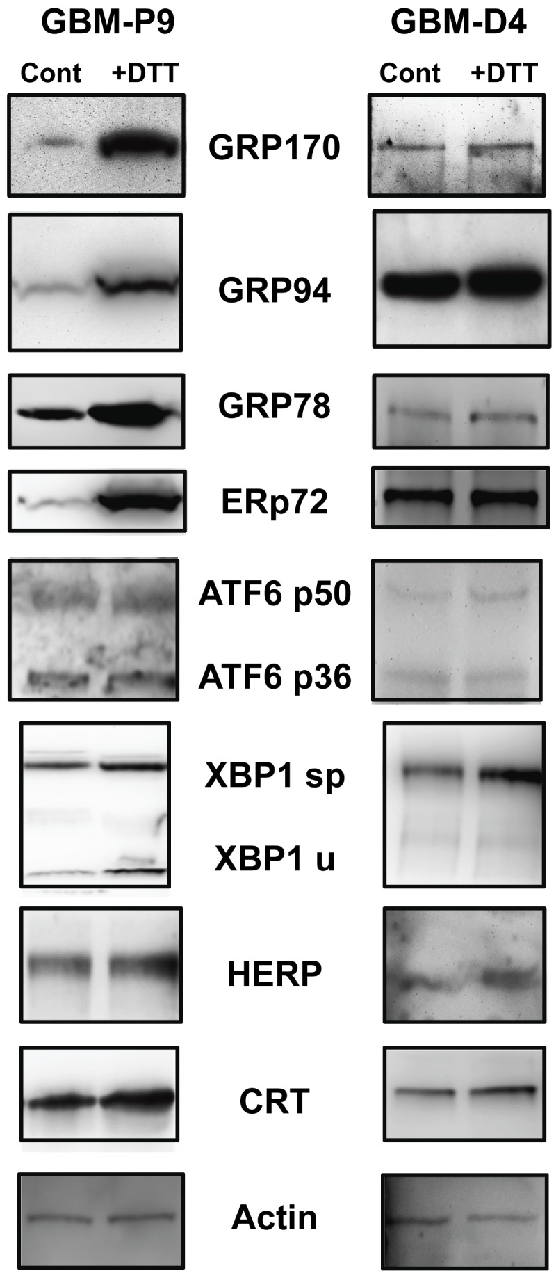 """Primary tissue culture cells from newly-resected gliomas also display inducible elements of the UPR. Dissociated cell cultured from freshly-resected GBMs were grown under serum-free conditions and were treated (or not, """"Cont"""") with 1 mM DTT (""""+DTT"""") for 4 hrs. Cell cultures were harvested, and cells lysed described. Proteins were separated on SDS-PAGE and Western blotted and probed with the antibodies listed. Upregulation of some of the UPR components is evident. Actin probe is used as a loading control, from the stripped CRT blot. Other actin blots to verify loading are shown in Supplemental Figure S3 ."""