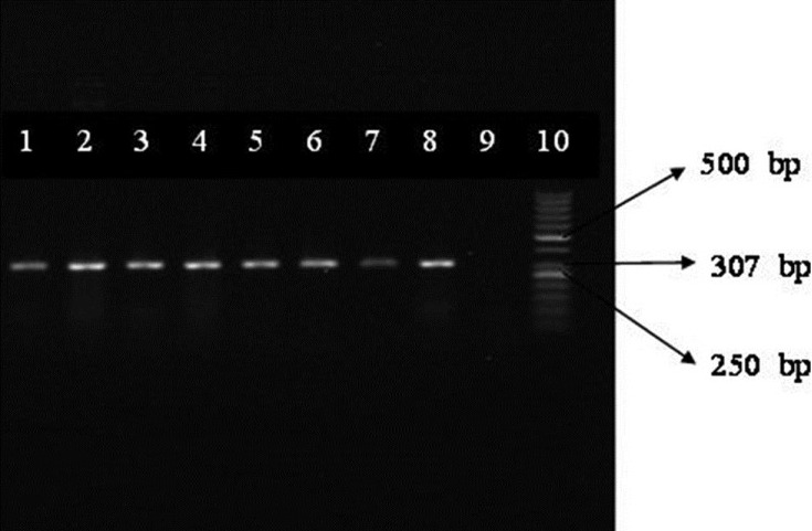 PCR results of mecA gene in 7 isolates staphylococcus epidermidis. Column 10: Size marker (50 bp). Column 8, 1-6: Isolates of Staphylococcus epidermidis containing mecA gene. Column 7: Positive control of staphylococcus aureus ATC 33591. Column 9: Negative control of staphylococcus aureus ATCC 25923