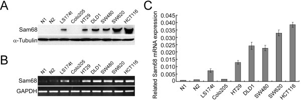 Analysis of Sam68 protein and mRNA expression in colorectal cancer (CRC) cell lines and normal intestine tissues. (A) Analysis of Sam68 protein expression in CRC cell lines (LS174t, Colo205, SW480, HT29, HCT116, SW620) and two cases of normal intestine tissues (N1 and N2) by Western blotting. (B) Analysis of Sam68 mRNA expression by RT-PCR. (C) Analysis of Sam68 mRNA expression in CRC cell lines and normal intestine tissues by Q-PCR, the average ratio of Sam68 expression normalized to GAPDH is shown; values are the mean ± SD of three parallel experiments.