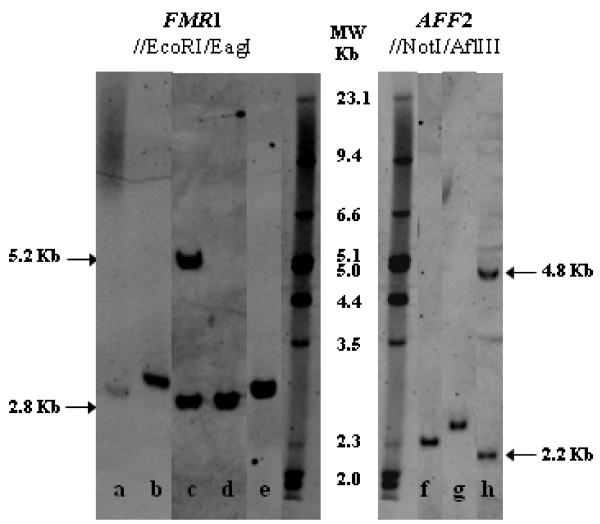 Examples of Southern blot results. Genotyping using FMR1 probe: After EcoRI /EagI double digestion, normal females exhibit two fragments, a ~2.8 kb (active X) and a ~5.2 kb (inactive X), while in normal males only a ~2.8 kb fragment is seen: (a) FXS male mosaic for a 51 CGG allele and a full mutation; (b) Premutated FMR1 male (110 CGGs); (c) Klinefelter with two FMR1 normal sized-alleles, showing the active and the inactive X-chromosome; (d) Normal FMR1 male (19 CGGs); (e) Premutated FMR1 male (58 CGGs). Genotyping using AFF2 probe: Following AflIII /NotI double digestion, normal females present two fragments, a ~2.2 kb (active X) and a ~4.8 kb (inactive X), whereas normal males exhibit only a ~2.2 kb fragment: (f) Intermediate AFF2 male (47 CCGs); (g) Premutated AFF2 male (68 CCGs); (h) Homoallelic female [(CCG) 14 /(CCG) 14 ].