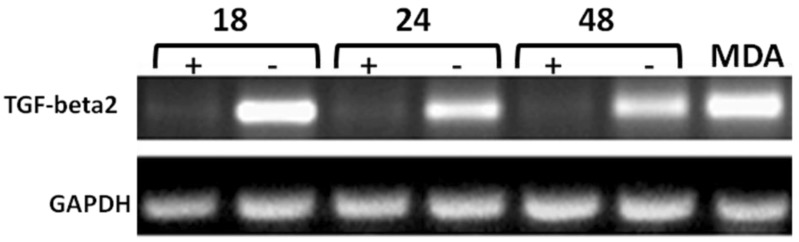 Time-course RT-PCR validation of TGF-beta2 as a potential target of CD44 in MCF7F-B5 breast cancer cell line . RNA samples were collected at different time points (18, 24 and 48hrs) following withdrawal of tet in the presence of <t>hyaluronan</t> (HA). The highly metastatic breast cancer cell line MDA-231 which expresses high levels of CD44 as well as TGF-beta2 was used as a positive control.