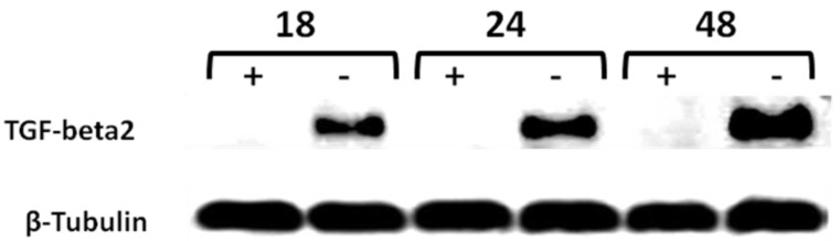 Time-course western blot validation of TGF-beta2 as a potential target of CD44 in MCF7F-B5 breast cancer cell line . Protein lysates were collected at different time points (18, 24 and 48hrs) following withdrawal of tet in the presence of hyaluronan (HA). The levels of expression of TGF-beta2 showed a time-dependent increase that was parallel to the increase of CD44 expression.