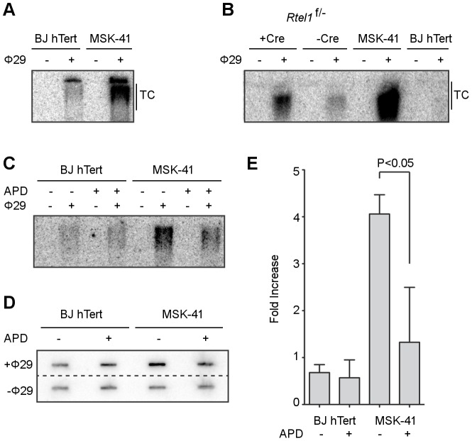 Inhibiting DNA replication blocks T-circle formation in MSK-41 RTEL1 R1264H cells. (A) Phi29-dependent T-circles in BJ hTERT and MSK-41. (B) Phi29-dependent T-circles in RTEL1 floxed/- MEFs ± Cre, BJ hTERT and MSK-41. (C) Phi29-dependent T-circles in BJ hTERT and MSK-41 ± aphidicolin (APD; 5 µM). (D) Dot blot of the Phi29-dependent T-circles in BJ hTERT and MSK-41 ± aphidicolin (APD; 5 µM). (E) Quantification of the fold increase in intensity of Phi29-dependent T-circles in the different cell lines subjected to the indicated treatments. Intensity mean and standard deviation were calculated over two independent experiments; statistical analysis (one-way ANOVA) was calculated with Prism (GraphPad).