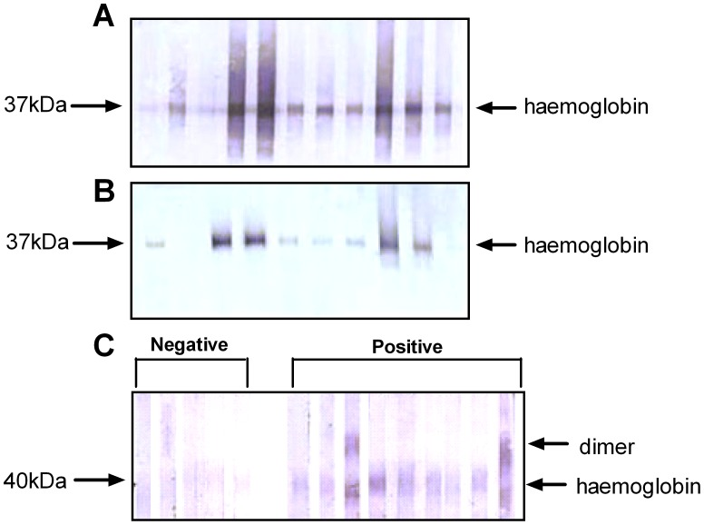 Immunoblotting with purified haemoglobin. A ) Specific IgG1 against purified Anisakis haemoglobin in serum from mice infected at week 0 with two live A. pegreffii L3 and re-infected at week 8 with 2 L3. Serum was collected at week 11. Each lane represents one individual mouse. B ) Specific IgE against purified Anisakis haemoglobin in mouse serum, collected as in (A). Each lane represents one individual mouse. C ) Specific IgG against purified Ascaris haemoglobin in human serum samples that were negative (0 kU/L specific IgE, CAP-RAST) or positive (0.9–17.9 kU/L specific IgE, CAP-RAST) for Ascaris specific antibodies. Each lane represents one individual.