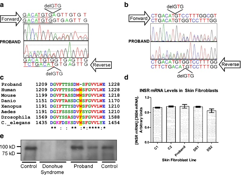 The Proband has a heterozygous GTG deletion at the end of exon 20 of the INSR gene in genomic DNA ( a ), which is seen also in INSR cDNA ( b ). The nucleotide deletion causes deletion of Trp1220 (Trp1193 in the mature receptor), a strongly conserved residue ( c ) located in an alpha helix within the tyrosine kinase damin of the receptor. There was no detectable change in expression of the INSR in dermal fibroblasts from the proband as assessed by quantitative real time PCR ( d ) and immunoprecipitation/immunoblotting ( e ) for the insulin receptor beta subunit