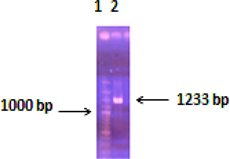 Antigenic region of the VacA gene from Helicobacter pylori amplified by PCR. Lane 1: DNA marker, Lane 2: PCR product