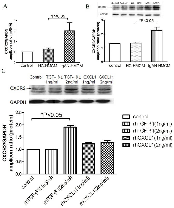 Upregulation of CXCR2 expression in podocytes cultured with conditioned medium of mesangial cells exposed to cIgA1 from IgAN patients (IgAN-HMCM) and rhTGF-β1. The mRNA (A) and protein (B) expression of CXCR2 were significantly increased in podocytes cultured with conditioned medium of mesangial cells exposed to cIgA1 from IgAN patients (IgAN-HMCM) than from healthy controls (HC-HMCM). Similar findings were observed in podocytes cultured with 2 ng/ml TGF-β1 (C), but not under rhCXCL1.