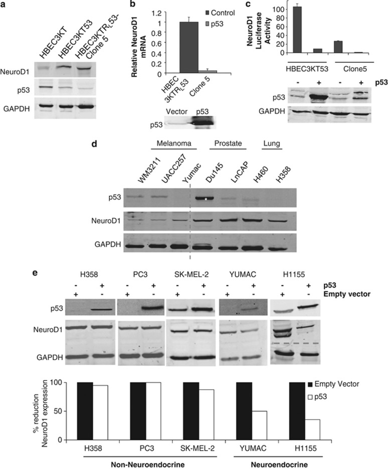 Loss of p53 is permissive for expression of NeuroD1. ( a ) NeuroD1, p53 and GAPDH (loading control) were immunoblotted in lysates of HBEC3KT, HBEC3KT53 and Clone 5. ( b ) qRT–PCR analysis of NeuroD1 in Clone 5 cells transfected as indicated. A representative p53 immunoblot is shown from one of three independent experiments. ( c ) HBEC3KT53 and Clone 5 were transfected with pGL3-NeuroD1-luciferase with and without p53. p53 was immunoblotted and luciferase activity was measured; one of six experiments shown. ( d ) Melanoma, prostate and lung cancer cell lines were lysed; 50 μg total protein was immunoblotted for p53, NeuroD1 and GAPDH (as loading control). The dashed line indicates discontinuity in gel. The asterisk represents a loss-of-function mutation in p53. 43 ( e ) Cell lines with loss of or mutation in p53 were transfected with control vector or vector encoding p53. Cells were lysed and immunoblotted for p53. Overexpression was quantified using Odyssey software.