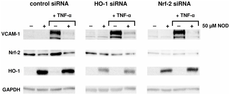 Partial silencing of Nrf-2 and HO-1 expression does not abrogate NOD mediated inhibition of VCAM-1. HUVECs were transfected with control siRNA, HO-1 siRNA or Nrf-2 siRNA. One day after transfection the cells were stimulated for 24 hrs with TNF-α alone (10 ng/ml), NOD alone (50 µM) or in combination of both. Cells that were not stimulated were included in each experiment. The expression of VCAM-1, Nrf-2 and HO-1 was assessed by western blotting. GAPDH was used as loading control. The results of a representative experiment are shown. A total of 3 independent experiments with different HUVEC cultures were performed.