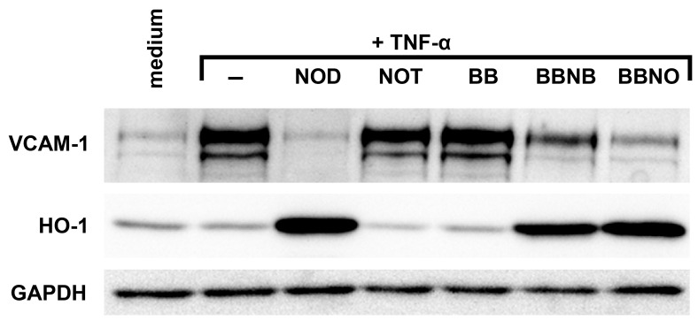 A redox moiety and sufficient hydrophobicity are required for NOD mediated inhibition of VCAM-1 expression and for induction of HO-1. HUVECs were stimulated with 10 ng/ml of TNF-α alone (−) or stimulated with TNF-α in the presence of the different compounds shown in figure 6 . Cells that were left untreated (medium) served as control. The expression of VCAM-1 and HO-1 was assessed by western blotting. GAPDH was used as loading control. The results of a representative experiment are shown. A total of 3 independent experiments with different HUVEC cultures were performed.