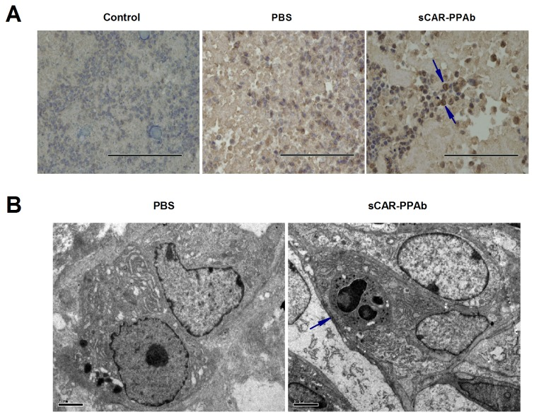 sCAR-PPAb activated macrophages in a K562/ADR xenograft model. BALB/c nude mice were transplanted with K562/ADR cells subcutaneously. sCAR-PPAb were injected intratumorally for 7 days at 100μg/day. PBS injection served as the control. A. Tumors were harvested and F4/80 was analyzed for macrophage infiltration by immunohistochemistry. The control showed IgG isotype staining. Arrows point to cells stained with F4/80. Bars show 200μm (400 x). B. Tumors were analyzed using a transmission electron microscope. The arrow points to cells undergoing phagocytosis. Bars show 2μm.