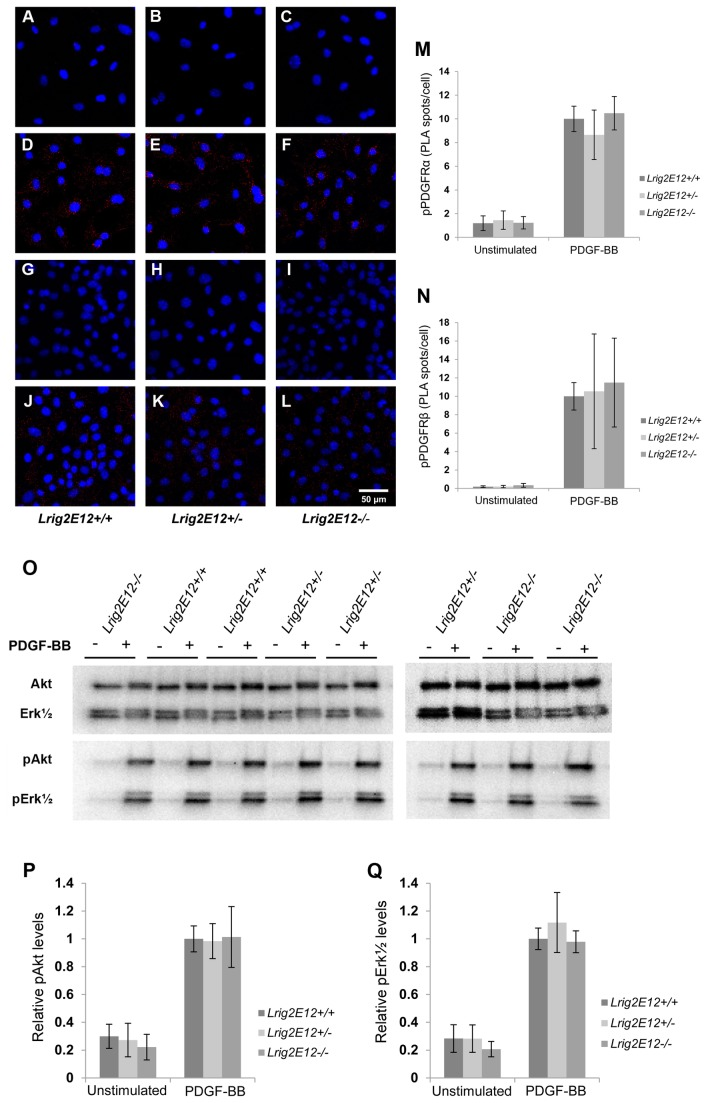 PDGF induced phosphorylation events in cells of different Lrig2 genotypes. Wild-type, heterozygous, or Lrig2 -deficient MEFs were serum starved for 24 hours followed by stimulation with 50 ng/ml PDGF-BB for different times. ( A – N ) Cells were untreated or stimulated with 50 ng/ml PDGF-BB for 10 minutes followed by cell fixation and analysis of the phosphorylation status of respective Pdgfr by in situ proximity ligation assay (PLA). Phosphorylated Pdgfr was visualized using fluorescence (red spots). Cell nuclei were counter-stained with DAPI (blue). ( A – F ) Representative PLA images of phosphorylated Pdgfrα (red spots) in un-stimulated ( A – C ) or PDGF-BB stimulated ( D – F ) cells of the indicated Lrig2 genotypes. ( G – L ) Representative PLA images of phosphorylated Pdgfrβ (red spots) in non-stimulated ( G – I ) or PDGF-BB-stimulated ( J – L ) cells of the indicated Lrig2 genotypes. ( M ) Quantification of PLA spots for phosphorylated Pdgfrα. Shown are the means from three independent experiments, including wild-type ( Lrig2E12+/+ , n=8), heterozygous ( Lrig2E12+/- , n=9), and Lrig2 -deficient ( Lrig2E12-/ -, n=6) cell lines from three different litters, with standard deviations indicated by error bars. ( N ) Quantification of PLA spots for phosphorylated Pdgfrβ. Shown are the means from three independent experiments, including wild-type ( Lrig2E12+/+ , n=8), heterozygous ( Lrig2E12+/- , n=9), and Lrig2 -deficient ( Lrig2E12-/ -, n=5) cell lines from three different litters, with standard deviations indicated by error bars. There were no differences observed in the levels of activated Pdgfrα or Pdgfrβ between cells of different genotypes. ( O – Q ) Cell lysates from cells that had been untreated or treated with 50 ng/ml PDGF-BB for 15 minutes were analyzed through Western blotting with antibodies against the indicated proteins. ( O ) A representative Western blot is shown of Akt, Erk1/2, phosphorylated Akt (pAkt), and phosphorylated Erk1/2 (pErk1/2) using cell