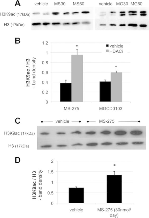 Intrathecal HDACI treatment globally increased acetylation at lysine residue 9 of histone 3 (H3K9ac) in the dorsal spinal cord. Shown are representative Western blots against H3K9ac after vehicle, MS-275 (MS30, MS60 at 30 nmol and 60 nmol/d, respectively) and MGCD0103 treatment (MG30, MG60 at 30 nmol and 60 nmol/d, respectively). Protein was obtained from ipsilateral dorsal spinal cord of animals with neuropathy as a result of spinal nerve transection (A) or antiretroviral drug injection (C). The blots were stripped and reprobed with an antibody against total H3 as a loading control. (B, D) Quantification of Western blot data using band-density analysis in ImageJ software. Significantly increased H3K9 acetylation was observed in the nerve injury model after both MS-275 and MGCD0103 treatment ( n = 4, independent-sample t tests, P