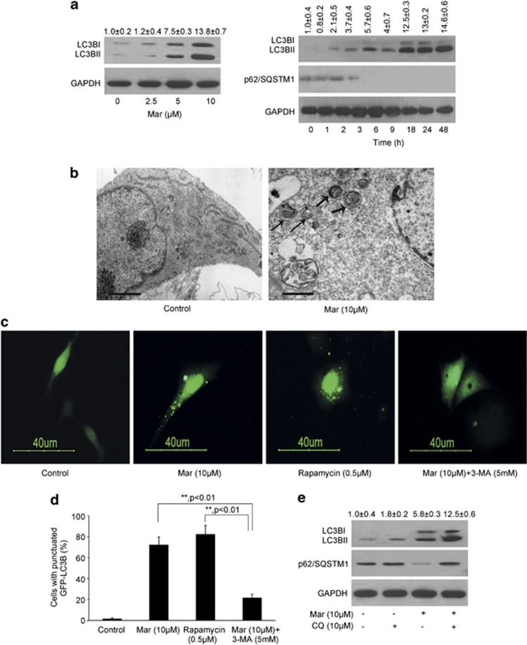 Mar treatment induces autophagy in PC3 cells. ( a ) Analysis of LC3B expression and conversion in PC3 cells treated with Mar by western blotting. OD of LC3BII relative to the control (0 h) was quantified as mean±S.D., n =3. ( b ) Electron micrographs showed autophagy induced by Mar. The thick arrows, autolysosome; the thin arrows, autophagosome. Bar, 1 μ m. ( c ) Analysis of LC3B punctate in PCa cells transfected with GFP-LC3B in the presence or absence of Mar and 3-MA. Rapamycin (0.5 μ M) was used as a positive control. PCa cells were pretreated with 5 mM 3-MA for 2 h prior to Mar treatment for 24 h. ( d ) Percentage of cells with punctuate GFP-LC3B to all GFP-positive cells. The cells with over five GFP-LC3B dots were chosen as positive cells. The values represented are means±S.D. for 200 cells each. ** P