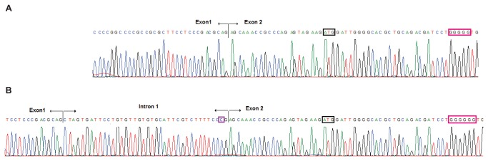Sequence electropherograms of cloned GJB2 transcripts from c. -22-2A > C/c.35delG compound heterozygous subject II:4 . The stretch of six guanine nucleotides affected by the c.35delG deletion appears boxed in red, while the start ATG codon is boxed in black. A Sequence of the transcript derived from the c.35delG allele, generated by use of the known acceptor site. Note that the stretch of guanine nucleotides contains only five guanines. B Sequence of the transcript derived from the c. -22-2A > C allele generated by use of the alternative acceptor site 1. Note the cytosine nucleotide at c. -22-2, boxed in purple.