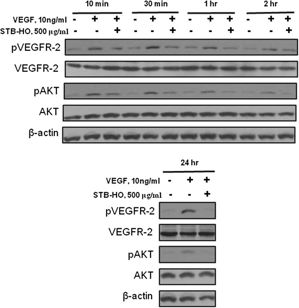Effect of STB-HO on pVEGFR2, PI3K and Akt in HUVECs. HUVECs were starved for 24 h in M199 containing 1% heat-inactivated FBS and then treated with various concentrations of STB-HO (0, 250 or 500 μg/ml) in M199 containing 1% heat-inactivated FBS, 10 ng/ml VEGF and 5 units/ml heparin for 10 min, 30 min, 1 h, 2 h, and 24 h. The cells were harvested and western blotting was performed to determine the expression of pVEGFR2, VEGFR2, pAKT, AKT and β-actin.