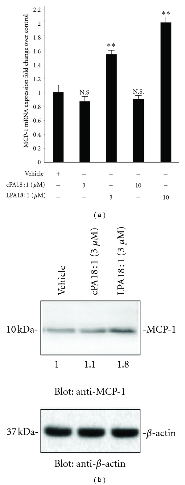 LPA induction of the secretion of MCP-1 was confirmed by RT-PCR and western blot analysis. (a) C2C12 cells were exposed to vehicle, unsaturated forms of LPA (18 : 1) (3 μ M), and cPA (18 : 1) (3 μ M) for 24 h, and RNA was isolated. The mRNA levels of MCP-1 were determined by real-time PCR. MCP-1 mRNA levels were normalized to 18S rRNA (mean ± SEM, n = 3; ** P