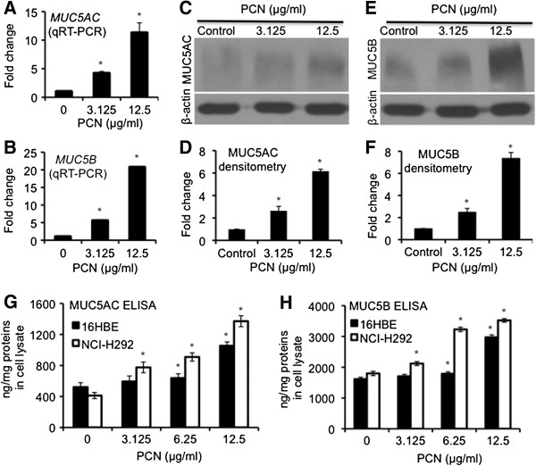 PCN induces the expression of mucins in NCI-H292 and 16HBE airways epithelial cells. (A - D) NCI-H292 cells were exposed to PCN at indicated concentrations for 24 hr. (A - B) qRT-PCR of MUC5AC and MUC5B genes in the presence of PCN. (C - F) Western blotting and densitometry analyses of the expression of both MUC5AC (C - D) and MUC5B (E - F) . The same membranes were stripped and probed with antibody against β-actin for loading controls. (G - H) Expression of MUC5AC (G) and MUC5B (H) mucins in NCI-H292 and 16HBE cells after 24 hr of exposure to clinically relevant concentrations of PCN, and quantified by ELISA. The qRT-PCR and ELISA experiments were performed in triplicates in three independent experiments. The western blotting experiments were repeated three times with similar results. Data for qRT-PCR, ELISA and densitometry of western blots represent the mean ± SD from all three experiments. * p