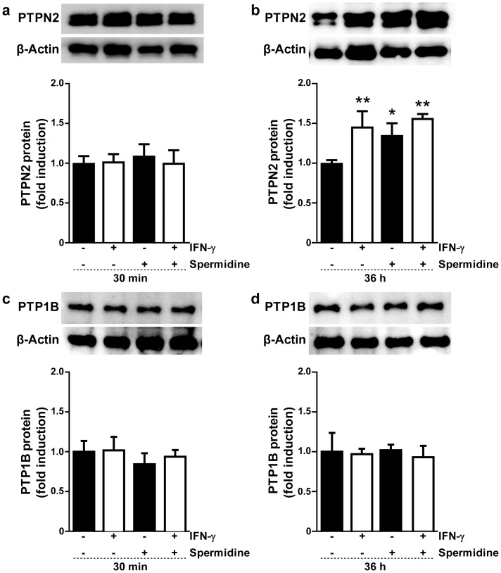 Effect of spermidine and interferon-gamma (IFN-γ) treatment on protein tyrosine phosphatases (PTPN2 and PTP1B) expression in human monocytic THP-1 cells. THP-1 cells were treated with IFN-γ (1000 U/ml) and/or spermidine (100 µM) for ( a , c ) 30 min or ( b , d ) 36 h. Whole-cell lysates were obtained and PTPN2 and PTP1B protein levels were analyzed by Western blot using β-actin as a loading control. The relative protein levels were assessed by densitometry (n = 3). Data are expressed as fold induction with respect to untreated cells. Asterisks indicate significant differences between treated and untreated cells (* = p