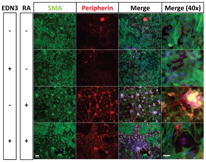 Effects of RA and EDN3 on the terminal culture morphology of ENS precursors. p75 NTR immunoselected cells were grown for 14 days in the presence of RA, EDN3, RA with EDN3, or neither compound. When EDN3 was absent, the EDN signaling inhibitor BQ-788 was added to inhibit endogenous EDNRB signaling. Culture morphology was evaluated by immunofluorescence microscopy. Peripherin expression (red) is consistent with neuronal morphology and myofibroblasts are indicated by expression of α-SMA (green). The third and fourth columns include DAPI staining for nuclei. The first three columns were photographed at 10x (Scale bar = 100 µm) and the fourth column was photographed at 40x (Scale bar = 50 µm). In the absence of EDN3 and RA (EDN3-RA-), SMA+ myofibroblasts predominated, but sparse neurons were also seen. EDN3+RA- treated cultures formed a homogeneous sheet of SMA+ myofibroblasts. In EDN3-RA+ cultures, neurons formed a plexus punctuated by large multicellular ganglia, abundant peripherin+ neurites and cell bodies, and non-myofibroblast-like SMA+ cells. SMA+ myofibroblasts were also present beneath the plexus. With EDN3+RA+ treatment, many peripherin+ neurons and long complex neurites were seen, without forming a plexus. Myofibroblasts, while excluded from neuronal regions, were still present in large number.