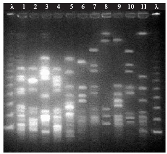 PFGE profile of SmaI-digested chromosomal DNA of CoNS isolates, obtained from patients in 9 de Julho Hospital in São Paulo city, Brazil. λ lamba ladder DNA markers; lanes 1–5 S. epidermidis ; lanes 6,7 and 10: S. haemolyticus ; lane 8: S. hominis ; lane 9: S. warneri ; lane 11: S. cohnii spp urealyticus .