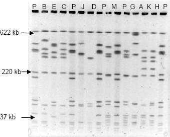PFGE profiles obtained with the Asc I restriction enzyme. P: L. monocytogenes H 2446 digested with Asc I; B; E; C; J; D; M; G; A; K; H: isolates of L. monocytogenes digested with Asc I.