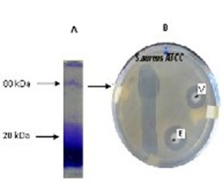 (A) SDS-PAGE electrophoresis of crude extract of Pseudoalteromonas sp and (B) gel developed by direct bioautography against S. aureus <t>ATCC</t> 25923 showing a single inhibitory zone. Clear zones of inhibition around the disks and strip of gel indicate antibacterial activity, (V) refers to disk impregnated with positive control vancomycin; (E) refers to disk impregnated with crude extract. The arrows show the position of molecular mass in kilodaltons.