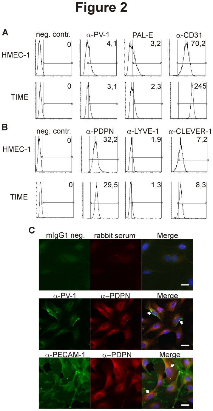 HMEC-1 and TIME show aberrant leukocyte-endothelial interactions under physiological shear stress. (A) Rolling and adhesion of PBMC and PMN on HMEC-1, TIME and HUVEC were analyzed using in vitro flow assay. The results are normalized to HUVEC (100%). (B) Absolute numbers of interacting (firmly adhering and transmigrating) leukocytes and (C) the transmigration percentage (the numbers of transmigrated cells divided by the numbers of interacting cells) on the three endothelial monolayers were determined. Data are shown as mean ± SEM (n = 3 for each assay, each with different leukocyte donors). *P ≤ 0.05. **P ≤ 0.01. ***P ≤ 0.001. (D) Images of representative endothelial monolayers 10 min. after start of PMN transmigration studies are shown. Phase contrast bright cells (representative cells indicated by white arrows) are located on the apical surface of the endothelial cells and phase contrast dark cells (representative cells indicated by white arrow-heads) are situated below the monolayer. Note that all three endothelial types form confluent intact monolayers. Inserts show adhering and transmigrating cells in more detail. Scale bars represent 100 µm.