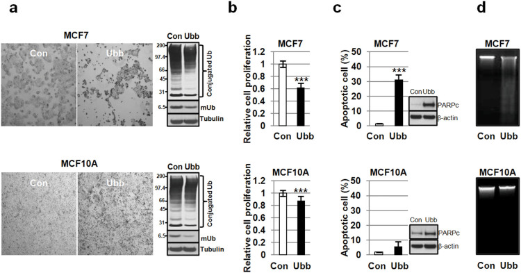Ubb -KD was more cytotoxic to MCF7 than MCF10A cells. (a) MCF7 and MCF10A cells were transfected with control siRNA or Ubb siRNA (20 nM) for 72 h and then observed by light microscopy. The levels of Ub in the transfected cells were compared by Western blotting with an anti-Ub antibody; α−tubulin was used as a control. (b) Relative cell proliferation was measured by MTT assay (n = 5). (c) The proportion of apoptotic cells at 72 h was measured by FACS (n = 2). The amount of cleaved PARP was also analyzed by Western blot. (d) DNA fragmentation was assessed from isolated genomic DNA. The data are shown as the mean ± SD, ***, p