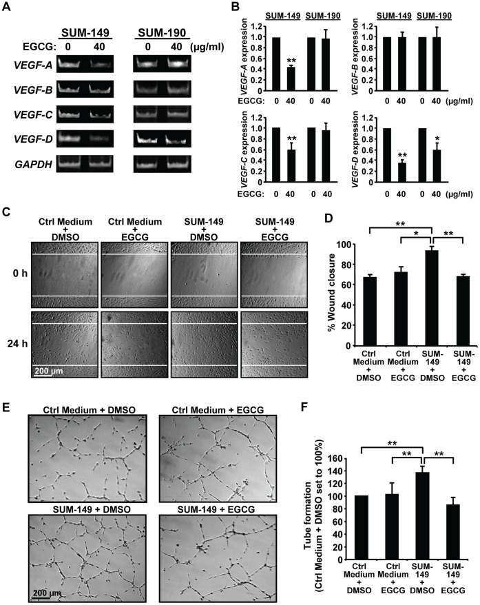 EGCG prevents stimulation of lymphatic endothelial cell migration and tube formation by SUM-149 cells. (A–B) RNA analysis. SUM-149 (left panels) and SUM-190 cells (right panels) were treated with 40 µg/ml EGCG or DMSO (0 µg/ml EGCG) for 72 h. RNA was analyzed by RT-PCR for levels of VEGF-A , VEGF-B , VEGF-C , VEGF-D and GAPDH . (A) Images from a representative experiment are shown. (B) Values for RNA expression from three independent experiments were normalized to the loading control GAPDH and are given as average fold change ± SD relative to the experimental control samples set to 1.0. *, p-value