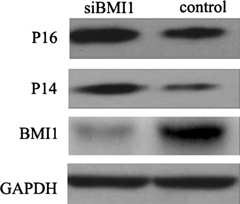 Effect of BMI1 knockdown on the expression of BMI1, P16, and P14 in bladder cancer T24 cells, measured by western blot. The BMI1 was knockdown by using siRNA transfected. After BMI1 knockdown, the expression of P16 and P14 increased