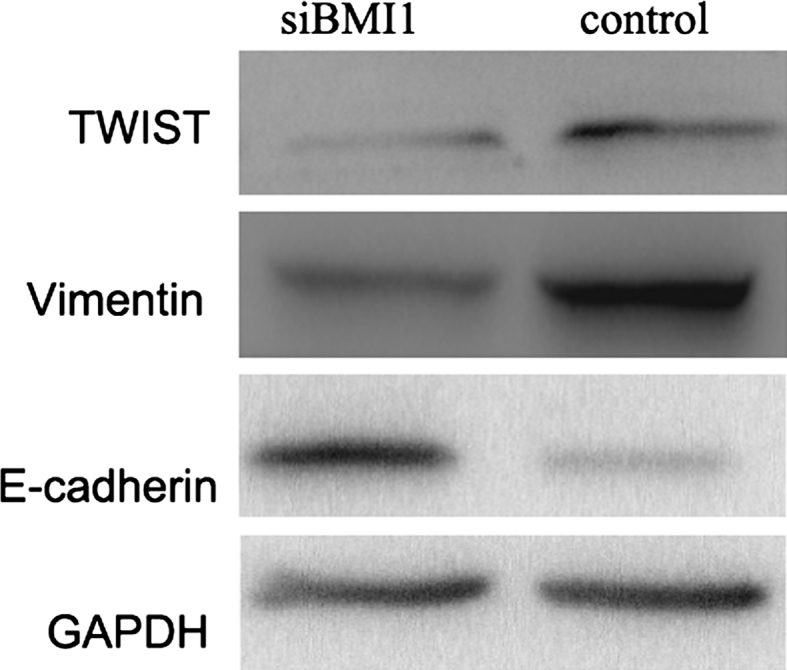 Effect of BMI1 knockdown on the expression of epithelial marker E-cadherin and mesenchymal marker vimentin and twist, measured by western blot. The epithelial marker E-cadherin was increased, whereas the mesenchymal marker vimentin and twist decreased in BMI1 siRNA group cells than control group cells