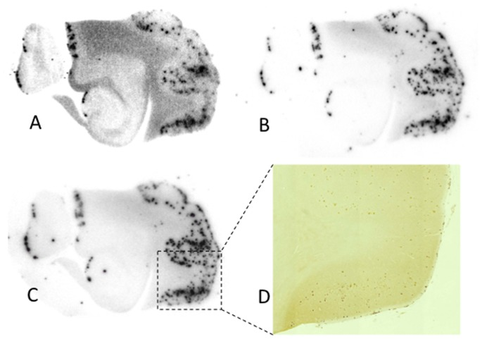 In vitro autoradiograms of sections of the AD brain labeled with [ 125 I]7 (A), [ 125 I]8 (B), and [ 125 I]9 (C). The Aβ plaques were confirmed by immunostaining (D).