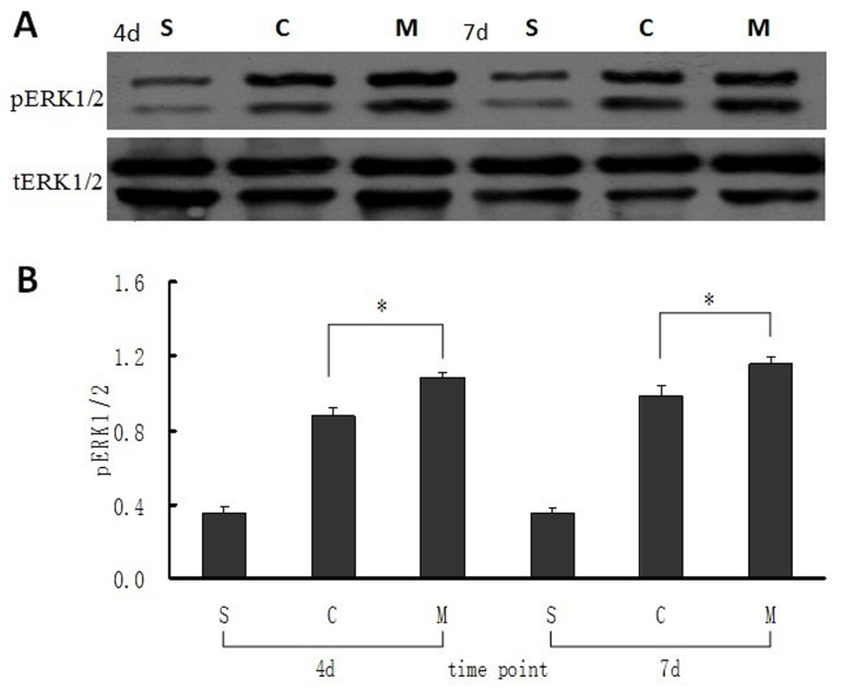 Expression of <t>pERK1/2</t> in intestinal mucosa at 4 and 7 days after MSCs transplantation. ( A ) Bands of the expression of pERK1/2 and its own tERk1/2 protein were detected by western blot. ( B ) The ratio value of pERK1/2 to its own tERK1/2 of the bands which was evaluated densitometrically using the software Quantity One for the three groups at different time points. Each bar represents mean ± SD of the ratio value in every group. S: sham group; C: control (saline) group; M: MSCs group. 4d and 7d represent 4 days and 7 days postoperatively. * : P