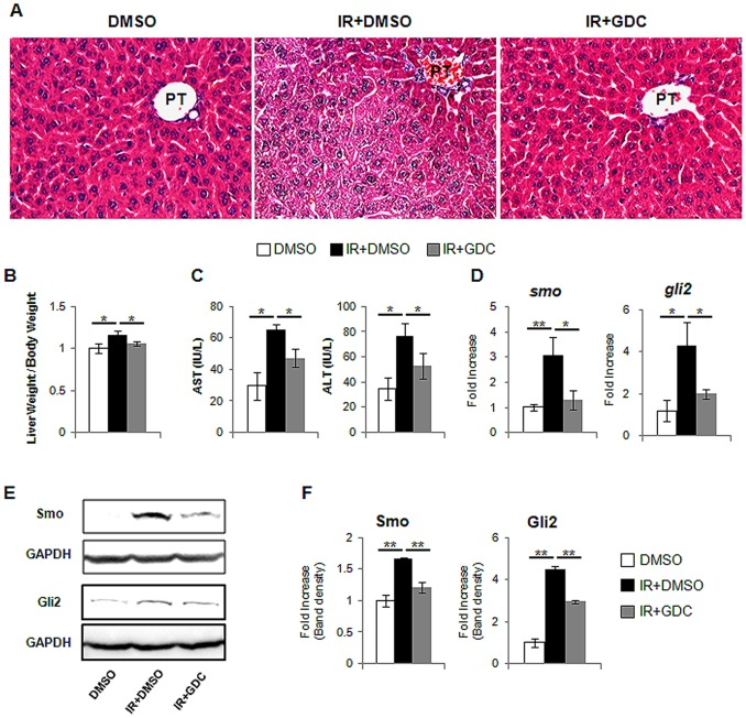 Hh inhibitor, GDC-0449, blocks hepatic Hh activity in the irradiated mice. (A) H E staining shows less fat accumulation in hepatocytes in liver from representative irradiated mice with GDC-0449 (IR+GDC) (X40). (B) Relative liver weight/body weight of mice. (C) The values of AST and ALT are graphed. (D) QRT-PCR analysis of liver mRNA from DMSO (DMSO), radiation treated mice with (IR+GDC) or without GDC-0449 (IR+DMSO) for smo, and gli2 ((n ≥4 mice/group). Mean±SD results are graphed. (E) and (F). Western blot analysis of Smo, and Gli2 (GAPDH was used as an internal control). Data shown represent one of three experiments with similar results (E: Immuoblot/F: Band density) (n ≥4 mice/group). Data represent the mean ± SD of three independent experiments (*p