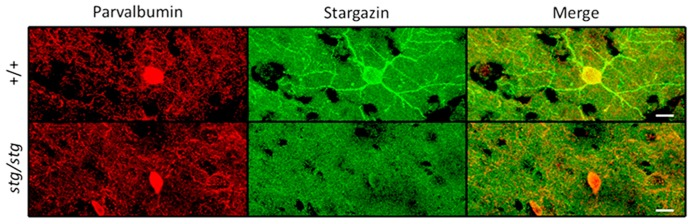 Stargazin expression is restricted to PV + interneurons in WT mouse somatosensory cortex (upper row). Somatodendritic stargazin immunoreactivity is lost in PV + interneurons in stargazer mouse (lower row). Co-labeling of stargazin and parvalbumin antibodies shown in layer 2/3 at 63× magnification (scale = 10 μm).