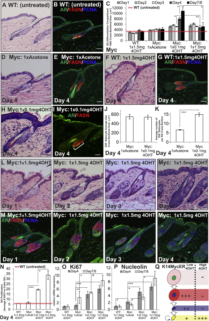 Effects of MYC Activation on SG Proliferation and Differentiation (A–Q) WT and K14MycER (Myc:) mouse telogen back skin was untreated, acetone-treated (vehicle), or 4OHT-treated, as indicated. (A, D, F, H, and L) Skin sections were stained with H E. (B, E, G, I, and M) Skin sections were stained with the antibodies shown. White bracket indicates expansion of AR-expressing sebocytes in (I). (C) Quantitation of SG differentiation compartment (average cross-sectional area occupied by differentiated sebocytes per SG) for the experiment described above. Red line represents average untreated WT measurement, and dashed red lines represent SEM. (J) Quantification of average size of individual differentiated sebocytes (cross-sectional area). (K) Average number of differentiated sebocytes per SG cross-section. (N) Quantitation of Ki67+ve sebocytes per SG. Red line represents untreated WT measurement. (O and P) qRT-PCR of Ki67 and Nucleolin mRNA levels relative to Gapdh . (Q) Schematic summary of changes relative to WT SG of treating K14MycER mice with low or high dose 4OHT. See Figure 1 N for stages in sebocytes differentiation. Increases in cell number are represented by +, ++, or +++, according to the strength of the effect. Reduction in cell number is represented by −. Three to nine mice were examined per condition. Error bars represent SEM #p