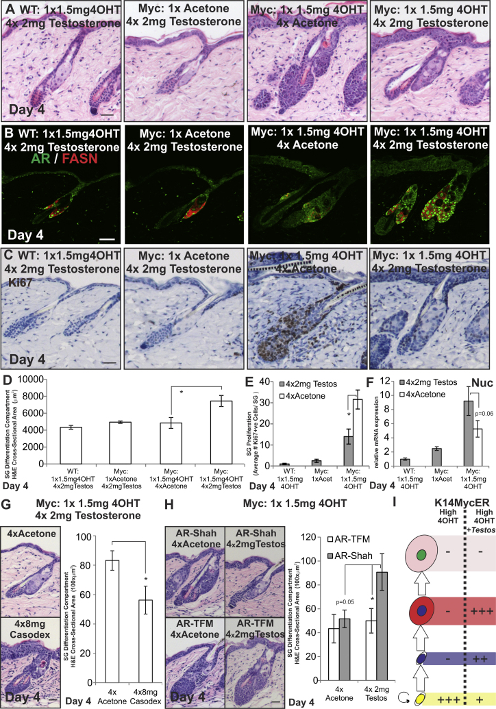Testosterone Modulation of AR Activity during MYC Activation (A–I) WT, K14MycER (Myc:), K14MycER AR-Shah , and K14MycER AR-TFM mice were treated as indicated. (A) Skin sections were stained with H E. (B and C) Skin sections were stained with the antibodies shown. (D) Quantitation of the SG differentiation compartment. (E) Quantitation of Ki67+ve sebocytes per SG. (F) qRT-PCR of Nucleolin (Nuc) mRNA levels relative to Gapdh . (G and H) Skin sections were stained with H E. Quantitation of SG differentiation compartment size is shown. (I) Schematic summary of the effect of testosterone on K14MycER mice treated with high-dose 4OHT. See Figure 1 N for stages in sebocytes differentiation. Increases in cell number are represented by +, ++, or +++, according to the strength of the effect. Reduction in cell number is represented by −. Three to six mice were examined per condition. Error bars represent SEM. ∗ p