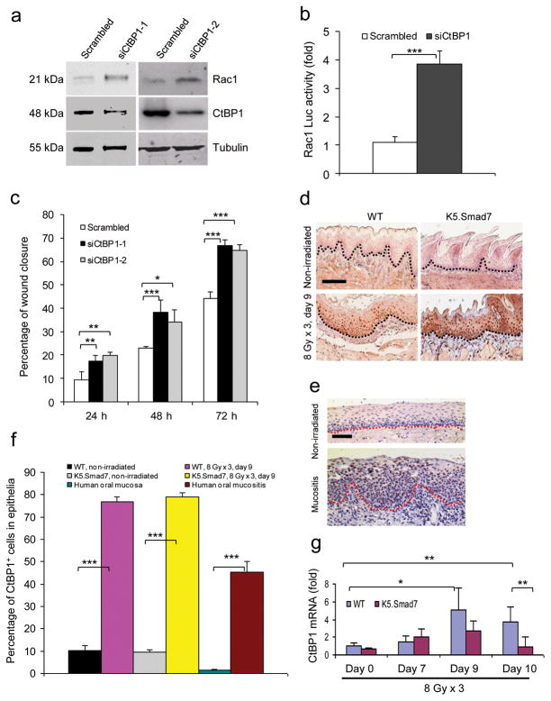 CtBP1-associated Rac1 repression contributes to the inhibition of keratinocyte migration ( a ) Western blot analysis of Rac1 protein after knockdown of CtBP1 in human oral keratinocytes. siCtBP-1 and siCtBP1-2 are two different siRNAs specific for CtBP1. ( b ) SBE-containing Rac1 -luc reporter activity (mean ± s.d.). n = 6 per group. ( c ) Effect of CtBP1 knockdown on human oral keratinocyte migration (mean ± s.d.). n = 3 per group. ( d ) Immunostaining of CtBP1 in irradiated sections adjacent to the ulcer (WT) or from the damaged area (K5.Smad7). Dotted lines denote the basement membrane. Scale bar, 50 μm. ( e ) Immunostaining of CtBP1 in nonirradiated oral mucosa and radiation-induced oral mucositis in human specimens. Dotted lines denote the basement membrane. Scale bar, 50 μm. ( f ) Quantification of nuclear CtBP1-positive cells (mean ± s.d.) in d and e. n = 3 or 4 per group. ( g ) Quantitative RT-PCR (mean ± s.d.) for CtBP1 (normalized to keratin 5). n = 6 per group for day 0, n = 4 for day 7 and day 9, and n = 7 for day 10. * P