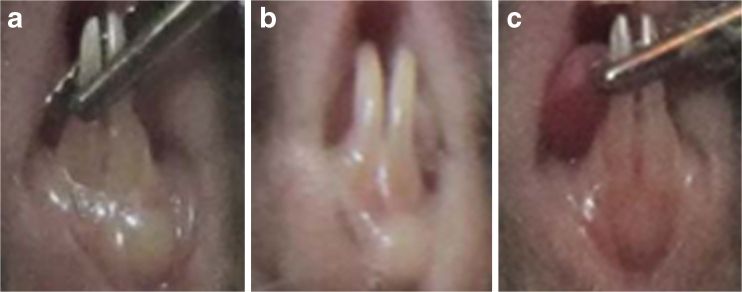 Morphologies of swollen gums in mice treated with P. gingivalis plus F. nucleatum . After 3 days of injection, the gums surrounding the lower incisors were red and swollen, and abscesses had formed. The gingival abscesses in the mice in the experimental group were less severe than in the control and blank groups. a The mice immunised with PBS served as the blank group. b The mice immunised with the recombinant strain La-pMG36e served as the control. c The mice immunised with the recombinant strain La-fomA.
