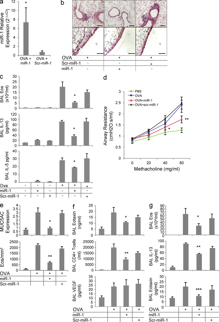The role of miR-1 in the lung Th2 inflammation. (a) C57BL/6 mice were sensitized and challenged with OVA as described in Fig. 2 c . Intranasal miR-1 or scrambled miR-1 (scr–miR-1) was delivered the day before the first challenge and every day afterward. The level of miR-1 was measured by TaqMan qRT-PCR in lung endothelial cells (normalized to the control group; n = 4 in each group; *, P
