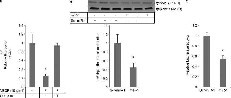 The VEGF–miR-1–Mpl axis in human endothelial cells. (a) HUVECs were stimulated with 10 ng/ml recombinant human VEGF and treated with SU5416 or vehicle (DMSO). miR-1 relative expression was measured by <t>TaqMan</t> <t>qRT-PCR,</t> normalized to vehicle controls, and expressed as 2 −ΔΔCt (three experiments; n = 3 or more in each group; VEGF-treated groups were compared; *, P