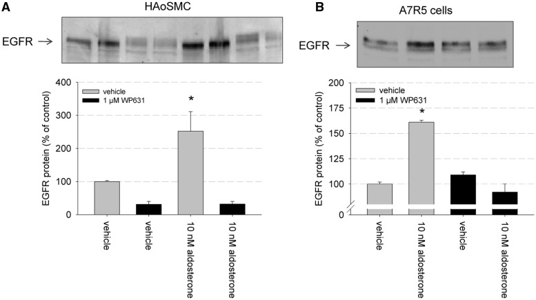 Relevance of SP1 for aldosterone-induced EGFR expression in primary culture. ( A ) HAoSMC were incubated for 24 h with either vehicle, 10 nM aldosterone, 1 µM WP631 or 10 nM aldosterone and 1 µM WP631 and EGFR protein expression was quantified by western blot and densitometric analysis ( n = 5, data represented as mean ± SEM, * P ≤ 0.05). ( B ) Primary rat aortic smooth muscle cells (A7r5) were incubated for 24 h with either vehicle, 10 nM aldosterone, 1 µM WP631 or 10 nM aldosterone and 1 µM WP631 and EGFR protein expression was quantified by western blot and densitometric analysis ( n = 3, data represented as mean ± SEM, * P ≤ 0.05).