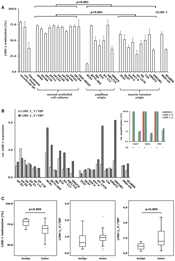 DNA methylation and expression changes of LINE-1 elements in bladder cancer . (A) DNA methylation in the CpG islets of LINE-1 was quantified by pyrosequencing in a set of 10 normal urothelial cell cultures and 18 bladder cancer cell lines. For comparison, LINE-1 DNA methylation was assessed in immortalized urothelial cells (TERT-NHUC) and in uncultured epithelial cells (uncultured UP) and connective tissue from one ureter. (B) LINE-1 RNA levels from the 5′- and 3′-regions were measured by qRT-PCR in a set of 6 normal urothelial cell cultures and 18 bladder cancer cell lines. Inset: amplification of different retroelements ( HERVK17 , LINE-1_5 ′ and LINE-1_3 ′) was measured in three bladder cancer cell lines using cDNA preparations with (+) or without (−) reverse transcriptase (RT) to assess the impact of genomic DNA contamination. Results were adjusted for each assay and cell line to reverse transcriptase positive preparations set as 100% (C) LINE-1 DNA methylation and expression of the 5′- and 3′-regions were analyzed in a set of 12 benign and 23 cancerous bladder tissues or 11 benign and 24 tumorous bladder tissues, respectively. Methylation is plotted as mean methylation value from four CpGs in percent (A,C) . RNA levels were each normalized to TBP and standardized to either the median RNA level of normal urothelial cell cultures (B) or the median RNA level of benign bladder tissues (C) set as 1. p Values calculated by the Mann–Whitney U -test were given above the brackets for significant changes ( p