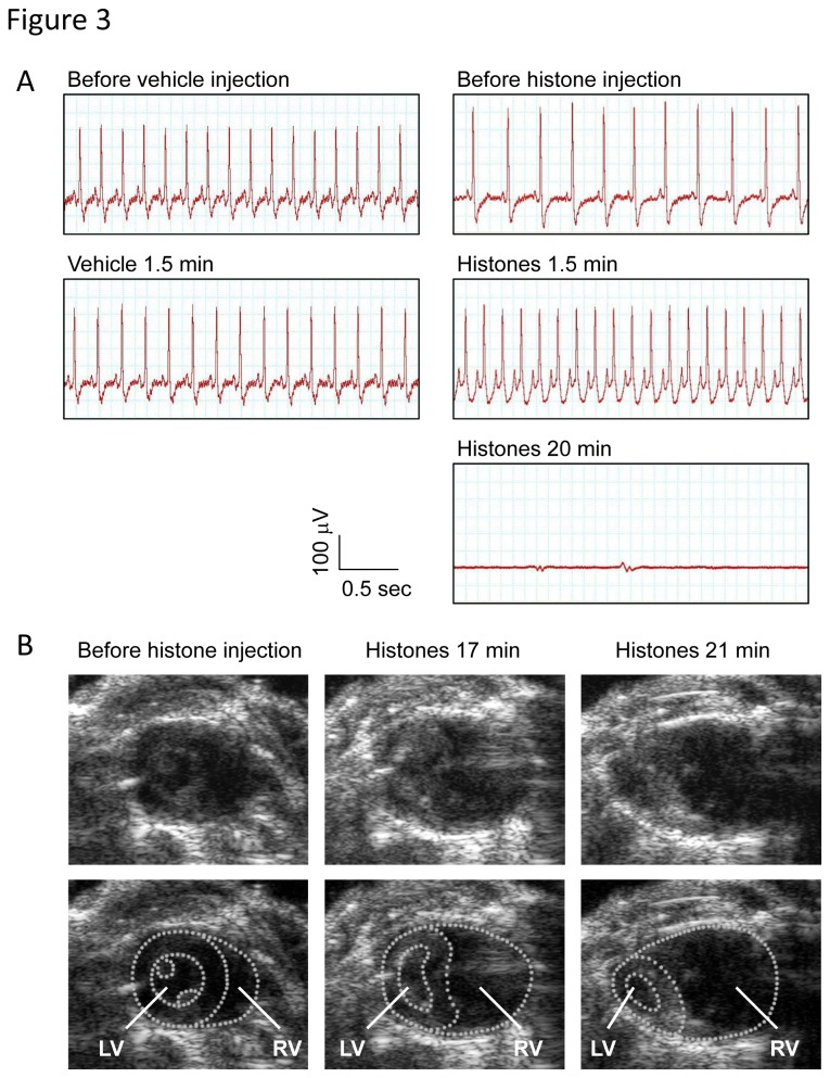Extracellular histones cause acute right-sided heart failure and ventricular arrest. (A) ECG in mice intravenously injected with vehicle or histones (80 µg/g). The voltage between the right limb and the feet (lead II) was recorded. Data presented are representative of three independent experiments. (B) Still images from Movies S1-S3. Transthoracic echocardiography was performed in mice before and after intravenous injection of histones. Extracellular histones caused dilatation of the right ventricle (RV) and displacement of the interventricular septum toward the left ventricle (LV).