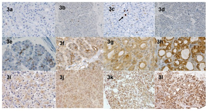 Immunohistochemical expression of caspase-3 antibody at baseline (a), H24 (3b), H48 (3c) and H72 (3d) in hyperoxic conditions. At H72 (3d), less than 5 cells per HPF expressed the caspase-3. Other types of cells (islets, ductal) did not express caspase-3 at any time. The membranous CA9 and the nuclear Hif-1α expression in acinar cells was studied at baseline (3e and 3i), H24 (3f and 3j), H48 (3g and 3k) and H72 (3h and 3l). The intensity greatly increased in dedifferentiated areas with a gradual appearance.