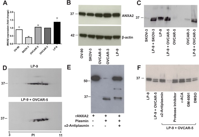 <t>Annexin</t> A2 expression in ovarian cancer cell lines, peritoneal cell line and co-cultured ovarian cancer and peritoneal cells (A) Annexin A2 expression in OV-90, SKOV-3, OVCAR-5, OVCAR-3 and LP-9 cell lines determined by real-time PCR and were assessed using 2 −ΔΔCT quantitation method. Data represents triplicate determinations ± SEM from 2 independent experiments. (B) Western immunoblotting shows annexin A2 band at 37 kDa in cell lysates of OV-90, SKOV-3, OVCAR-5, OVCAR-3 and LP-9. β-actin was used as loading control. (C) Western immunoblotting shows two isoforms of annexin A2 at 37 kDa and 36 kDa bands in the conditioned media (CM) of LP-9 cells alone and a 35 kDa annexin A2 band present in the CM of co-cultured LP-9 and ovarian cancer cells. (D) 2D-western immunoblotting showed multiple annexin A2 spots at 37 kDa in the CM of LP-9 cells alone and annexin A2 isoforms at 37 kDa and 35 kDa in the CM of co-cultured LP-9 and OVCAR-5 cells over a pI values range of 6 to 8. (E) Annexin A2 western immunoblotting of recombinant annexin A2 with <t>GST</t> tag (~63.4 kDa) and a cleaved annexin A2 at ~36 kDa in the presence of plasmin that was partially inhibited by α2-antiplasmin. (F) Annexin A2 western immunoblotting of the CM of co-cultured OVCAR-5 and LP-9 cells treated with α2-antiplasmin, protease inhibitor cocktail, ε-aminocaproic acid (ε-ACA), GM-6001 and DMSO.