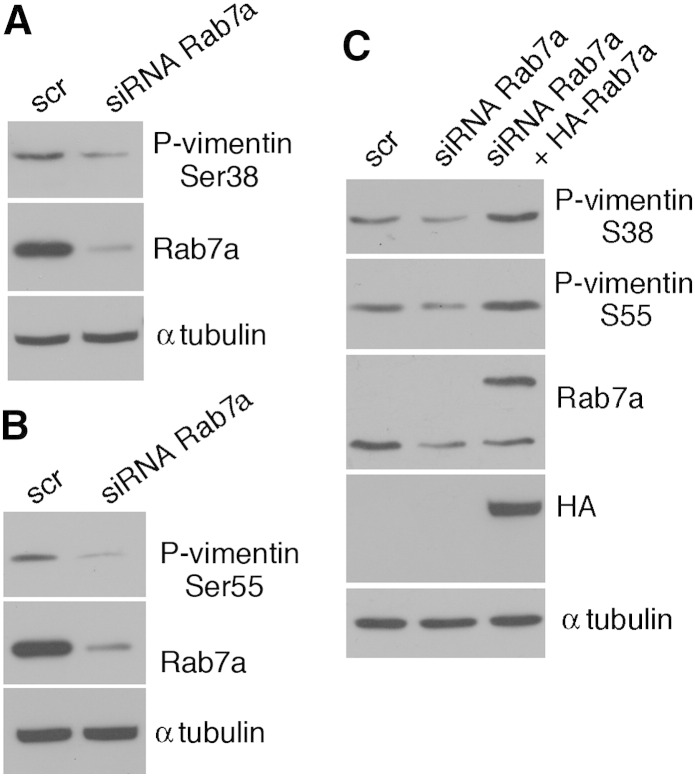 Vimentin phosphorylation is decreased in Rab7a-silenced cells. (A–B) Total extracts of Hela cells treated with control RNA (scr) or with Rab7a siRNA, as indicated, were subjected to Western blot analysis using anti-phospho Ser38 (A) or Ser55 (B), anti-tubulin and anti-Rab7a. (C) Total extracts of Hela cells treated with control RNA (scr) or with Rab7a siRNA and transfected with HA-Rab7a, as indicated, were subjected to Western blot analysis using anti-phospho Ser38 and anti-phospho Ser55 vimentins, anti-Rab7a, anti-HA and anti-α-tubulin antibodies.