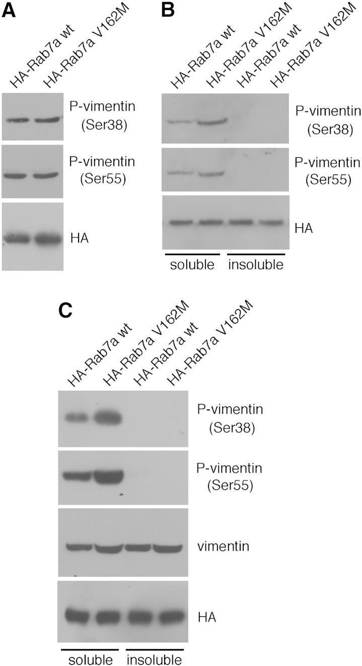 Rab7a is able to interact with the phosphorylated form of vimentin. (A) Total extract of HeLa cells expressing HA-tagged Rab7a wt or Rab7a V162M were subjected to immunoprecipitation using anti-HA resin. Western blot analysis of immunoprecipitates was made using anti-HA, anti-phospho-vimentins Ser55 and Ser 38. (B) Soluble and insoluble fractions of Hela cells expressing HA-tagged Rab7a wt or Rab7a V162M were subjected to Western blot analysis using anti-phospho-vimentins Ser55 and Ser 38. (C) Soluble and insoluble fractions of HeLa cells expressing HA-tagged Rab7a wt or Rab7a V162M were immunoprecipitated using anti-HA resin. Immunoprecipitates were subjected to WB analysis using anti-phospho-vimentins Ser38 and Ser55, anti-vimentin and anti-HA antibodies.